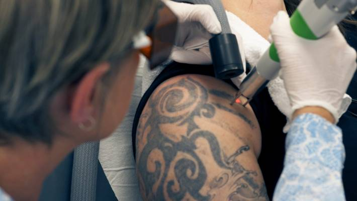 The art of the tattoo, removal: tribal designs, Felix the cat and ...