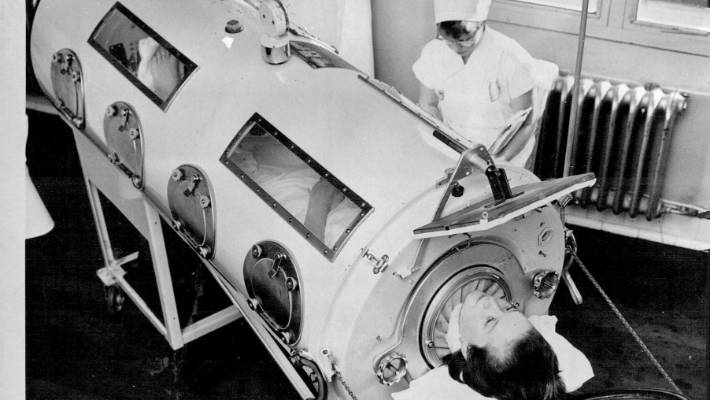 By 1961, some polio patients were treated in iron lungs, in which air was withdrawn from the chamber, creating a vacuum. Air was then pumped back in, putting pressure on the patient's chest, and forcing air into and out of the lungs. Some patients lived in iron lungs for many hours a day for decades.