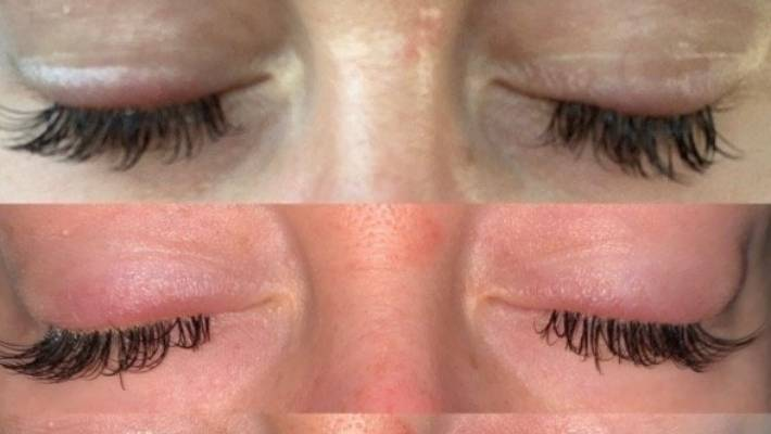 9c9dec857b7 'Incorrectly applied' eyelash extensions leave woman with flaky eyelids,  bleached eyelashes