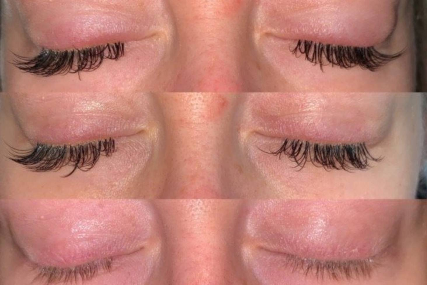 Incorrectly applied' eyelash extensions leave woman with flaky ...