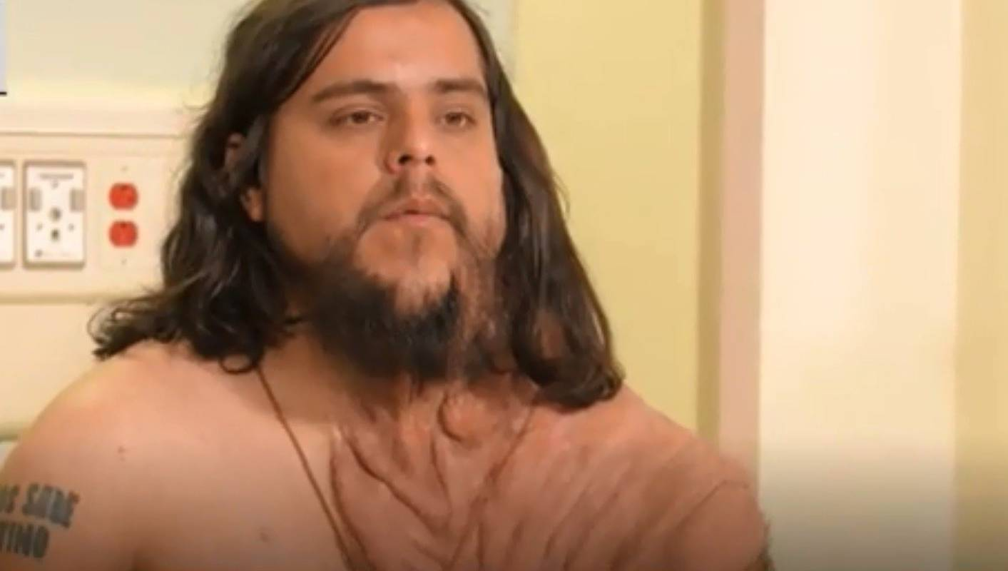 Doctors Perform Life-changing Surgery On Man With Rare