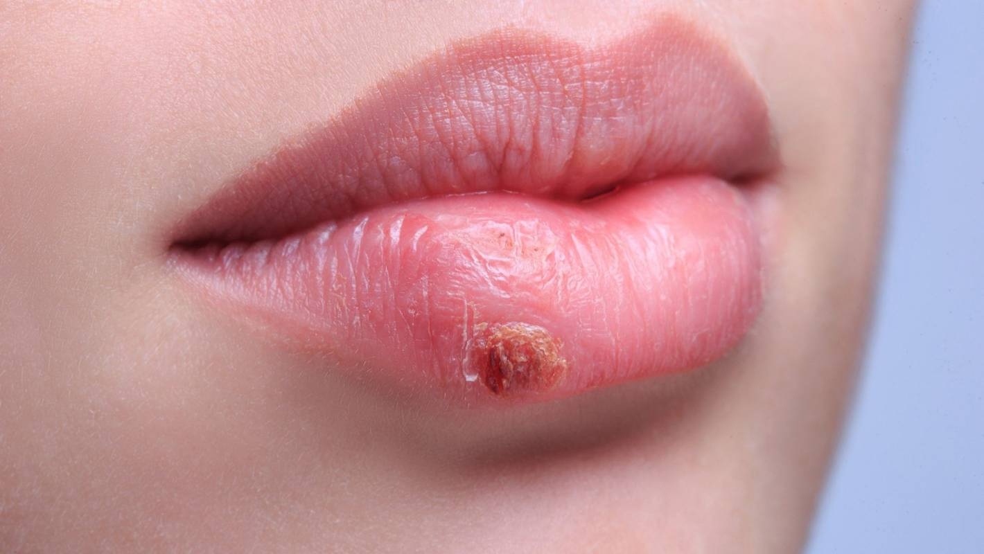 What to do about cold sores | Stuff co nz