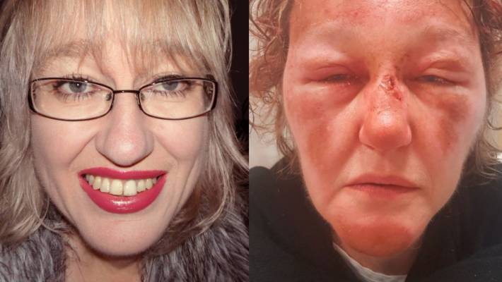 Woman like 'Mike Tyson opponent' after fall left her pinned face