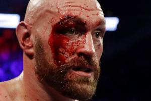 Tyson Fury was left a bloodied mess after his points win over Otto Wallin in Las Vegas.