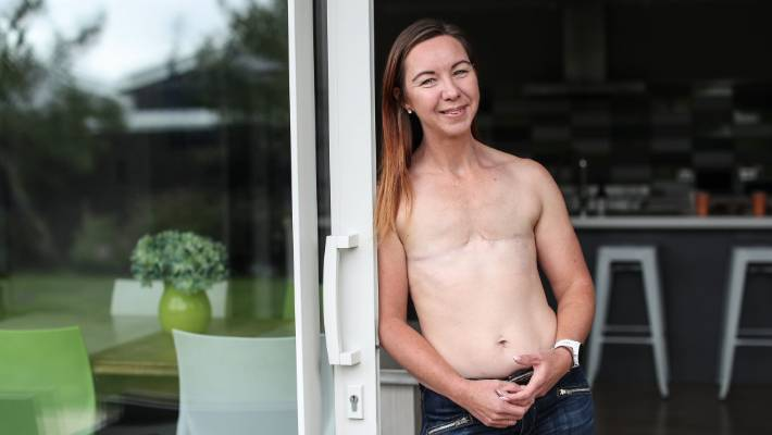 Breast cancer after double mastectomy