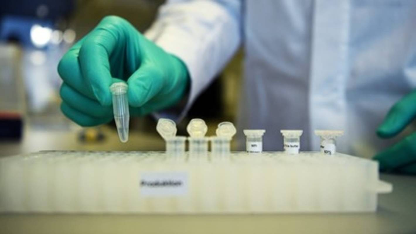 Coronavirus: Tests for potential vaccines begins in Australia