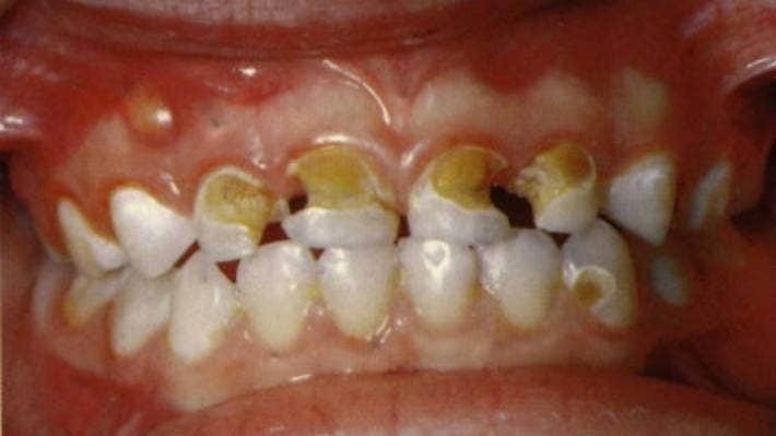 Advanced tooth decay on a child's teeth.