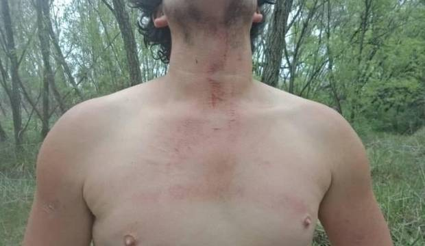 Man 'flew backwards' after striking wire tied between trees while quad bike riding