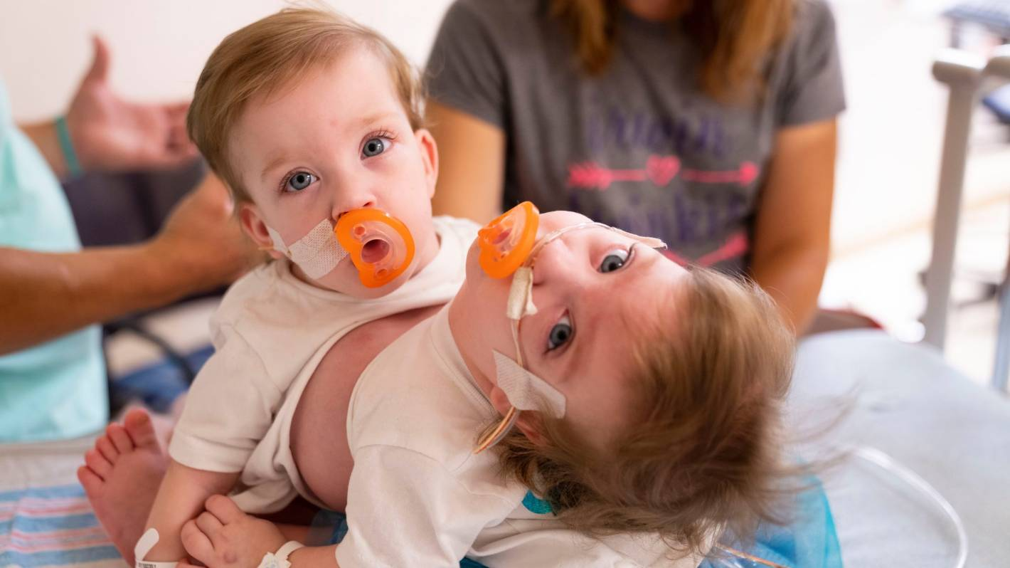 Baby conjoined twins in the US separated in 'extraordinary, emotional' 11 hour surgery