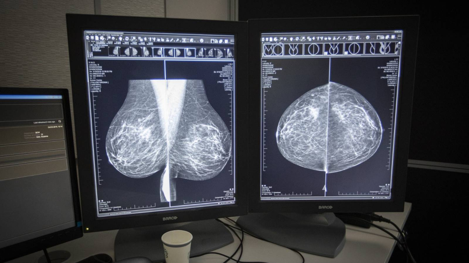 Breast cancer diagnoses drop due to Covid-19, but on the rise again