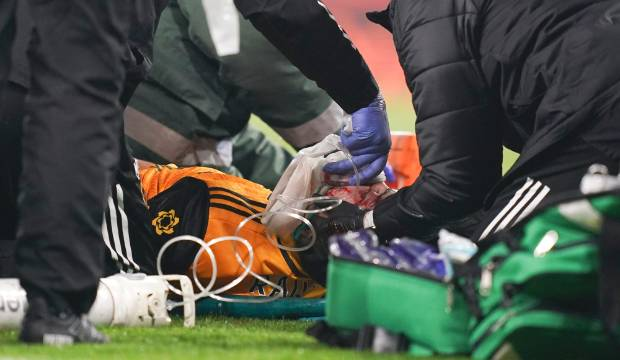 Wolves striker Raul Jimenez has surgery for fractured skull after clash of heads