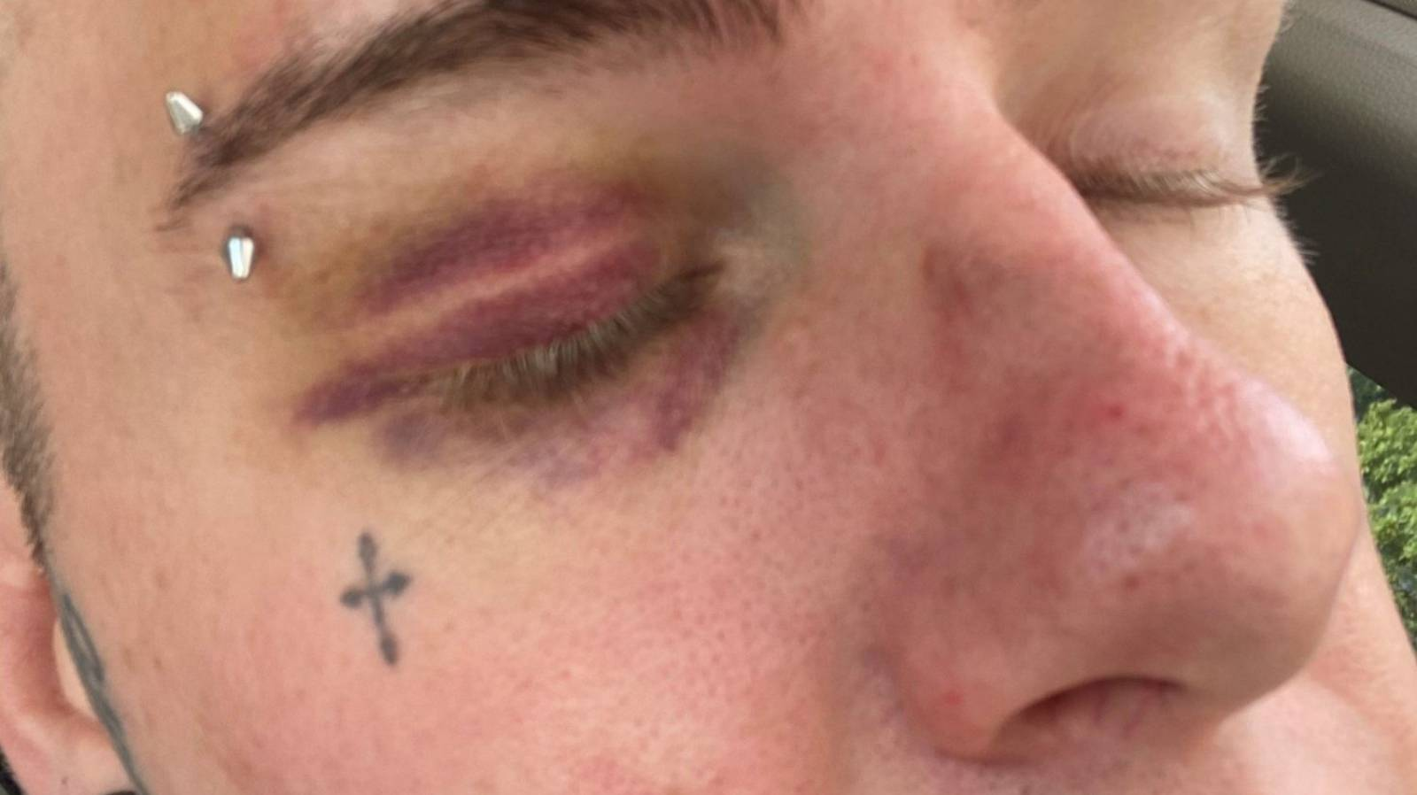 Gay man punched, stomped on by men yelling homophobic slurs