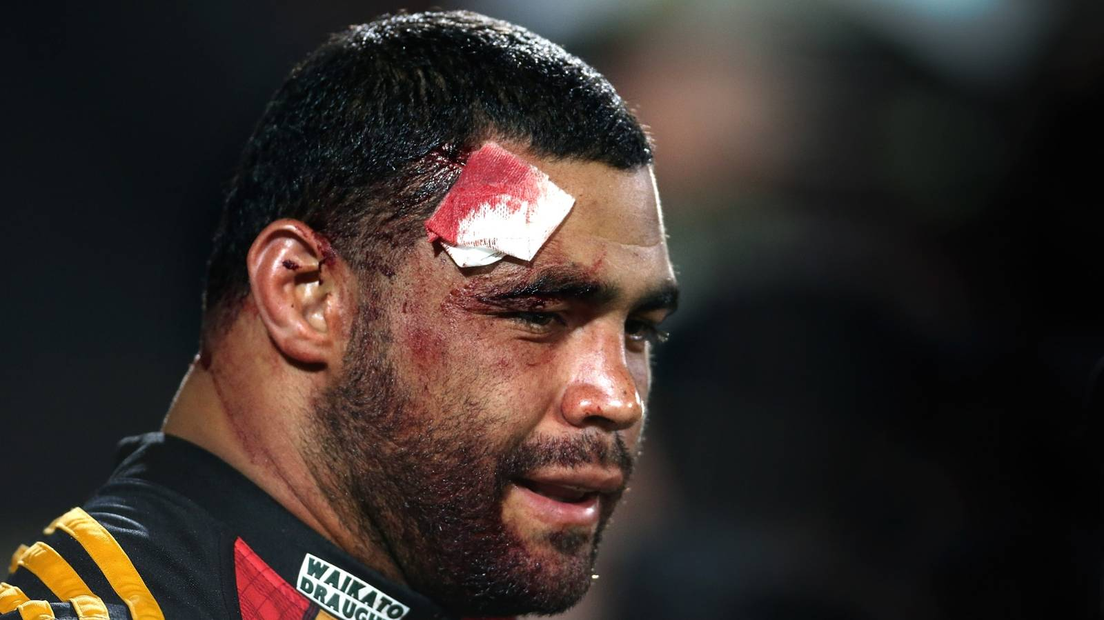 Concussion will affect former All Black for life